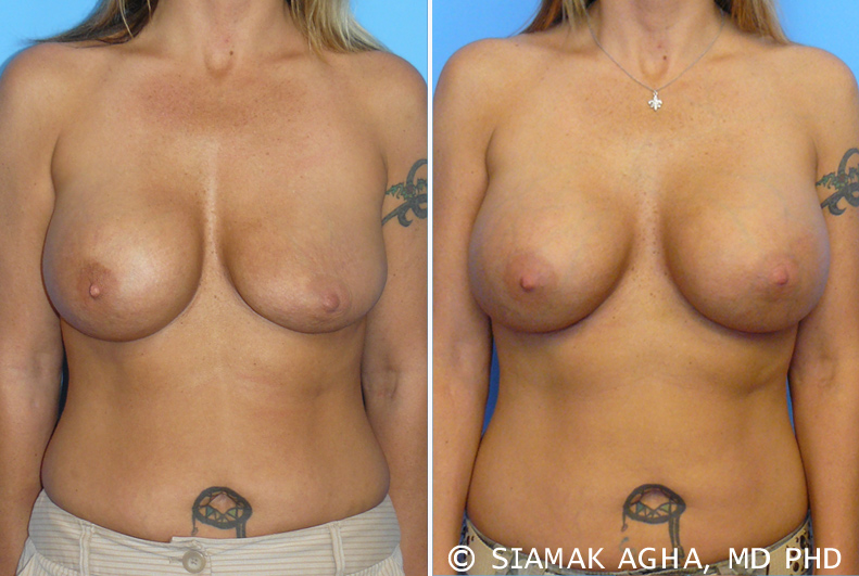 Breast augmentation is a procedure that is often assumed to be simple in nature and execution, but is actually quite complex.