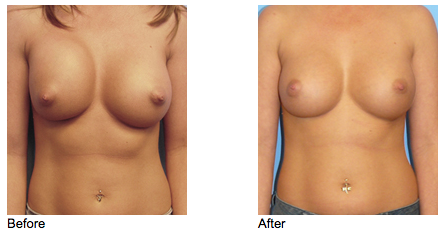 Before - 31 year old female who developed capsular contracture