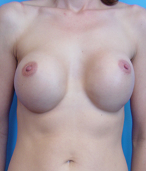breast-implant-revision-02-before