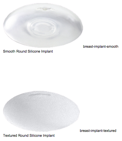 Breast Implants Newport Beach Image 1