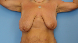 breast surgery in Newport Beach