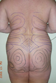 Buttock Augmentation Details Newport Beach - Image 1