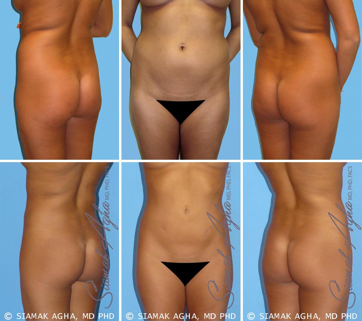 Liposuction Before and After Set 3