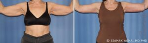Arm Lift Results