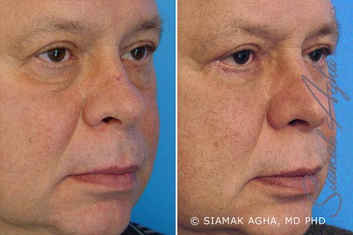 Orange County Newport Beach Blepharoplasty 1 Front View