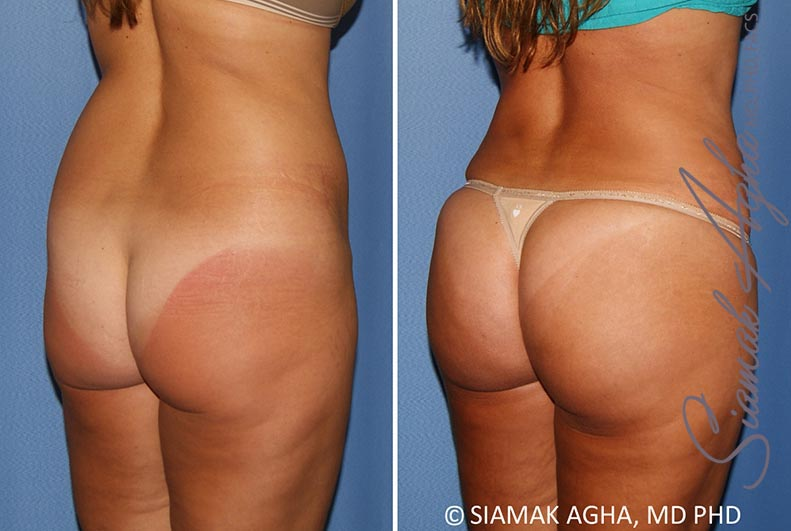 Orange County Newport Beach Brazilian Butt Lift 30 Back Right View