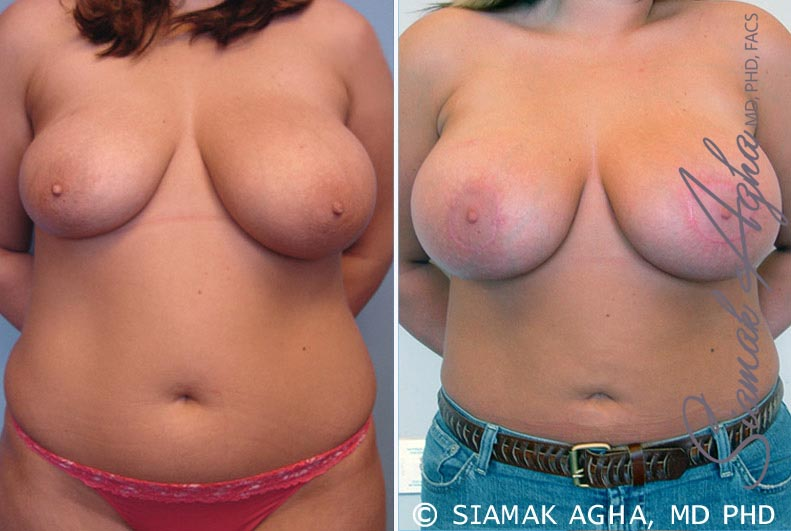 Orange County Newport Beach Breast Asymmetry 1 Front View