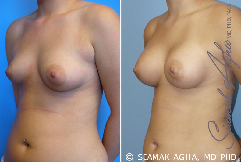 Orange County Newport Beach Breast Asymmetry 2 Front Left View