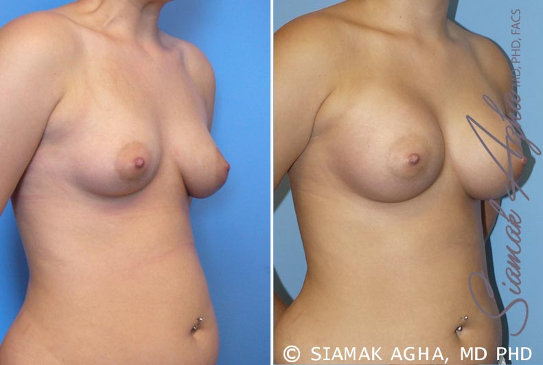Orange County Newport Beach Breast Asymmetry 2 Front Right View