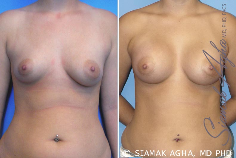 Orange County Newport Beach Breast Asymmetry 2 Front View