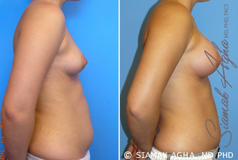 Orange County Newport Beach Breast Asymmetry 2 Right View