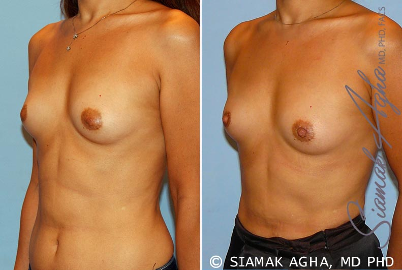 Orange County Newport Beach Breast Asymmetry 3 Front Left View