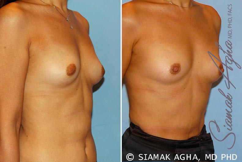 Orange County Newport Beach Breast Asymmetry 3 Front Right View