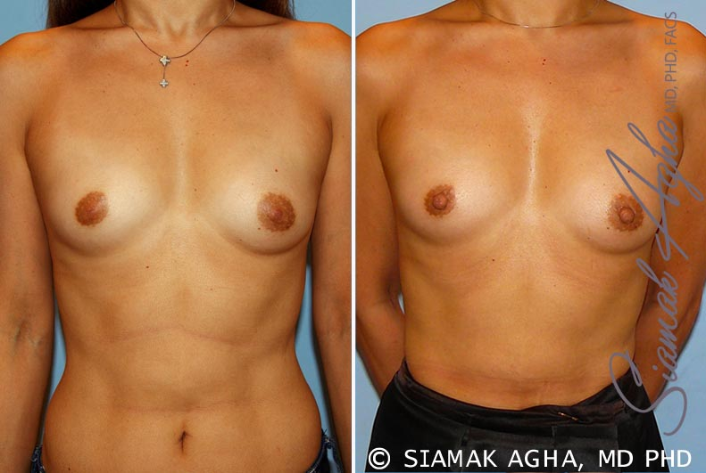 Orange County Newport Beach Breast Asymmetry 3 Front View