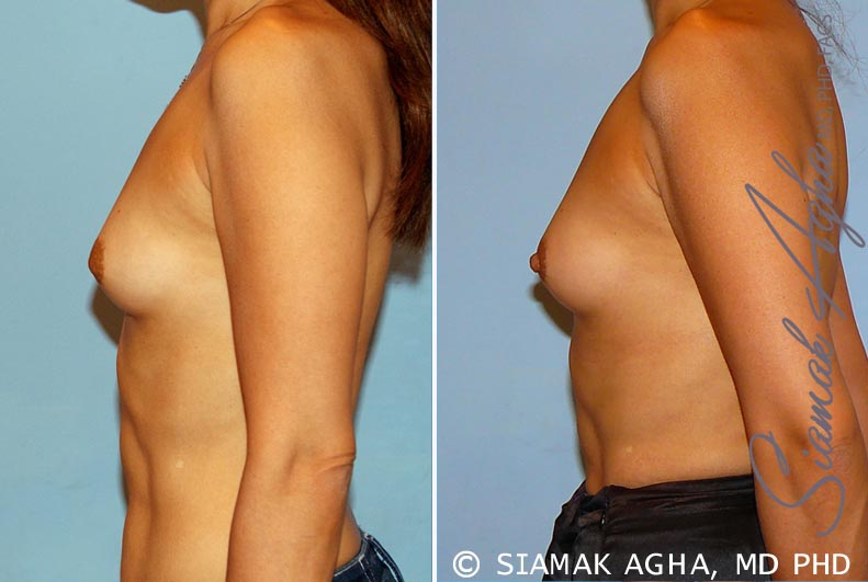 Orange County Newport Beach Breast Asymmetry 3 Left View