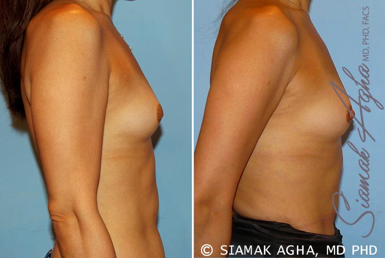 Orange County Newport Beach Breast Asymmetry 3 Right View