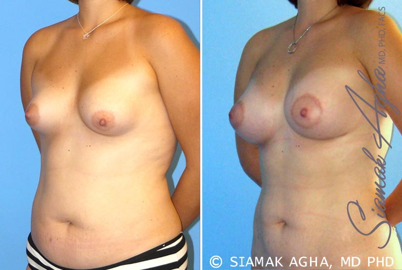 Orange County Newport Beach Breast Asymmetry 4 Front Left View