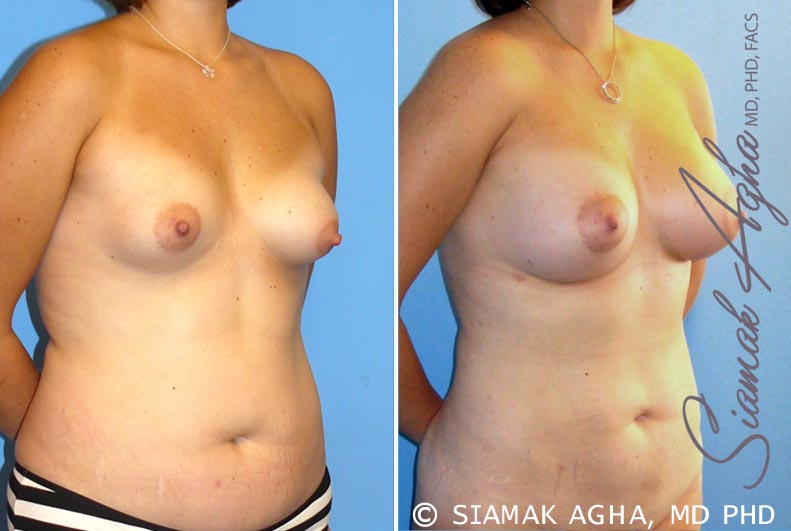Orange County Newport Beach Breast Asymmetry 4 Front Right View