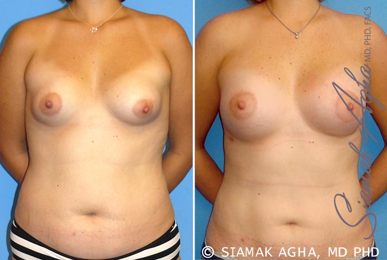 Orange County Newport Beach Breast Asymmetry 4 Front View