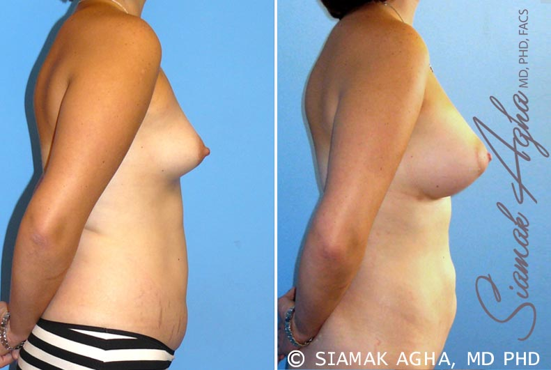Orange County Newport Beach Breast Asymmetry 4 Right View