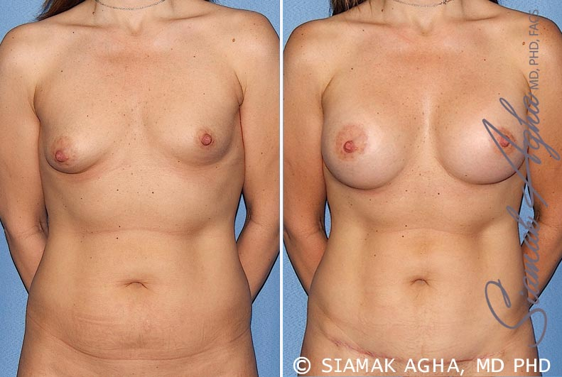 Orange County Newport Beach Breast Asymmetry Patient 5