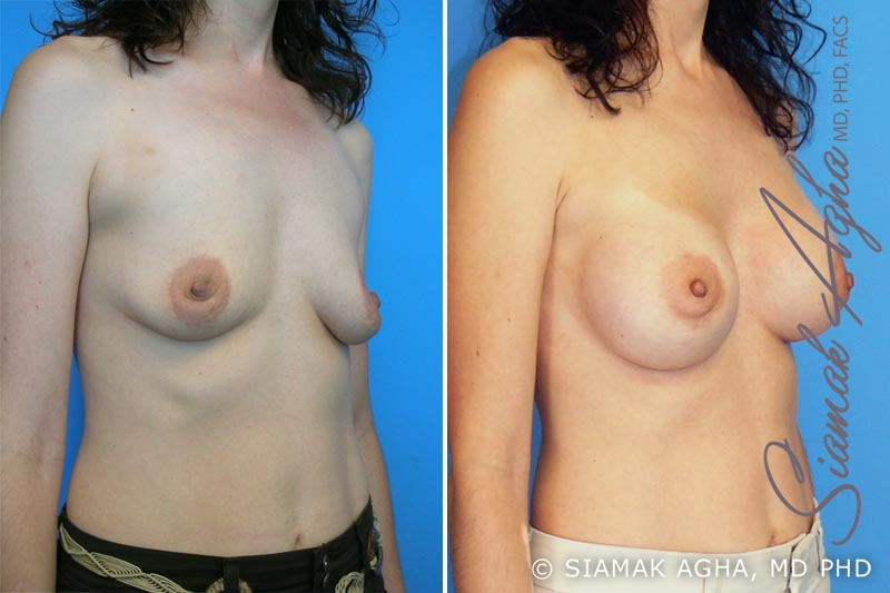 Orange County Newport Beach breast augmentation 1 Front Right View