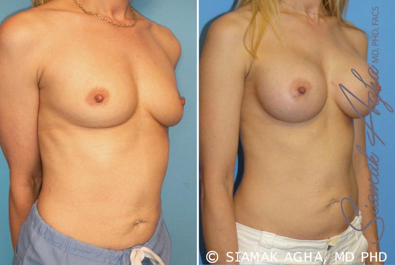Orange County Newport Beach breast augmentation 10 Front Right View