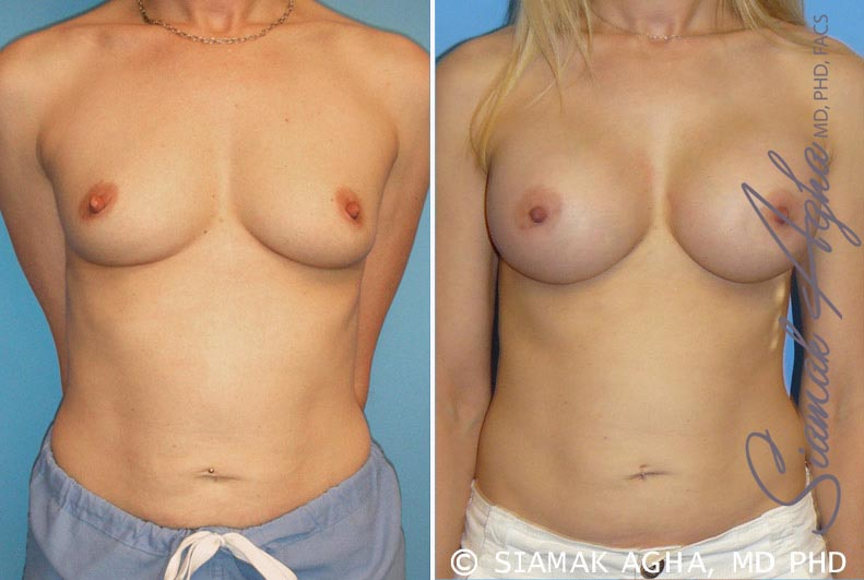Orange County Newport Beach breast augmentation 10 Front View