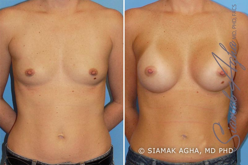 Orange County Newport Beach breast augmentation 11 Front View