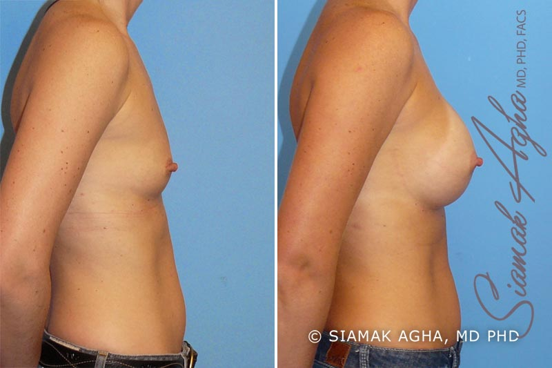 Orange County Newport Beach breast augmentation 11 Right View