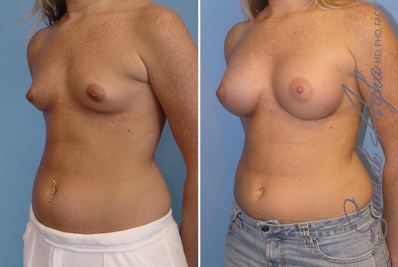 Orange County Newport Beach breast augmentation 12 Front Left View