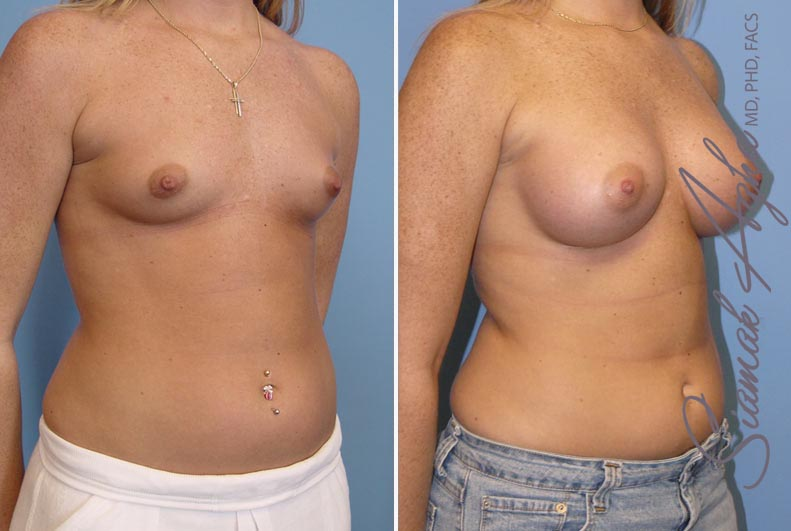Orange County Newport Beach breast augmentation 12 Front Right View