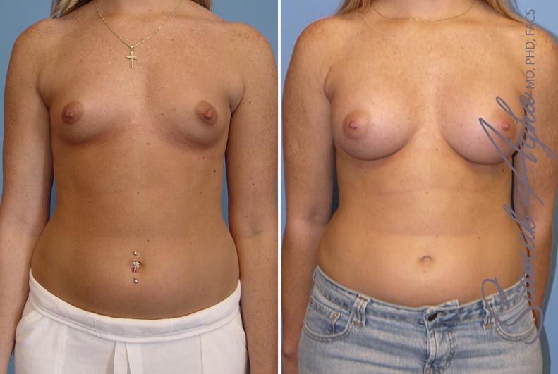 Orange County Newport Beach breast augmentation 12 Front View