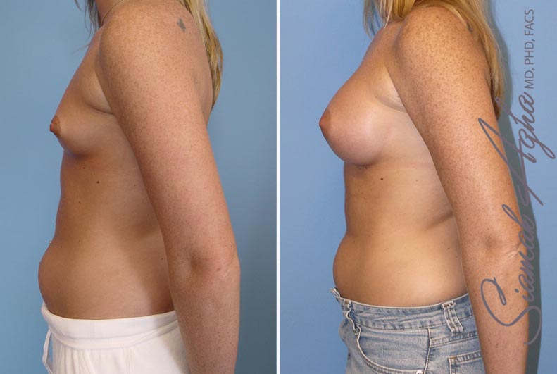 Orange County Newport Beach breast augmentation 12 Left View