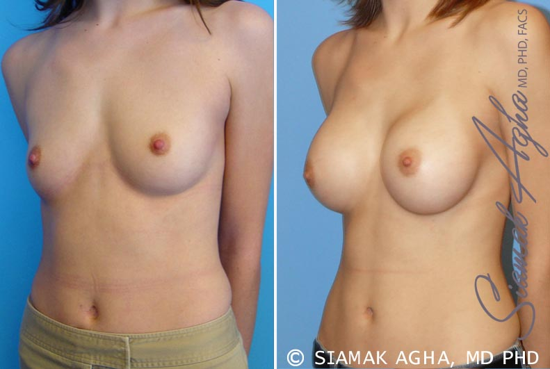 Orange County Newport Beach breast augmentation 13 Front Left View