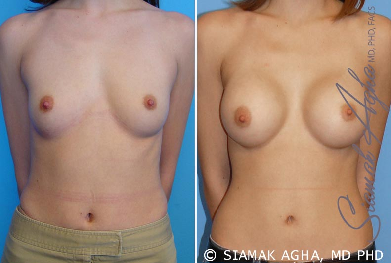 Orange County Newport Beach Breast Augmentation Patient 13