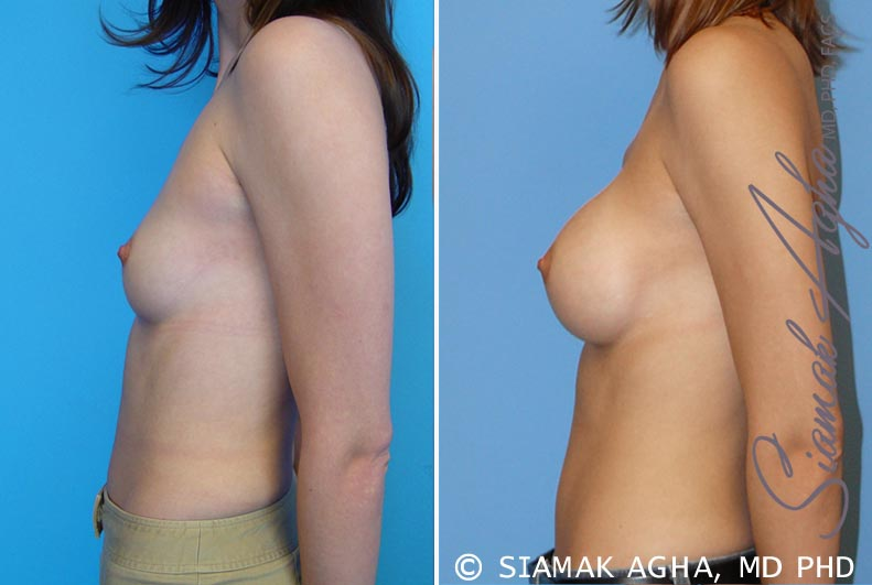 Orange County Newport Beach breast augmentation 13 Left View