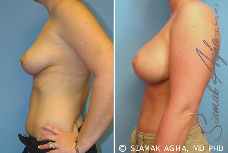 Orange County Newport Beach breast augmentation 14 Left View
