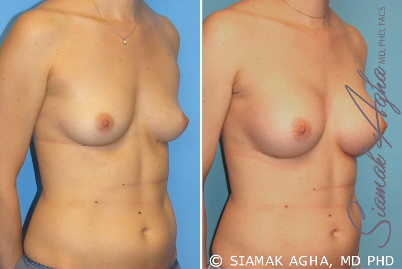 Orange County Newport Beach breast augmentation 15 Front Right View