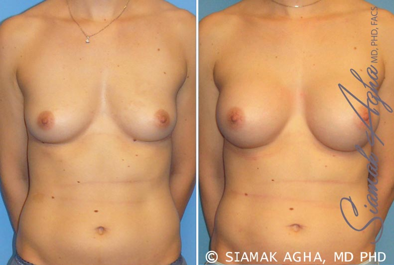 Orange County Newport Beach Breast Augmentation Patient 15