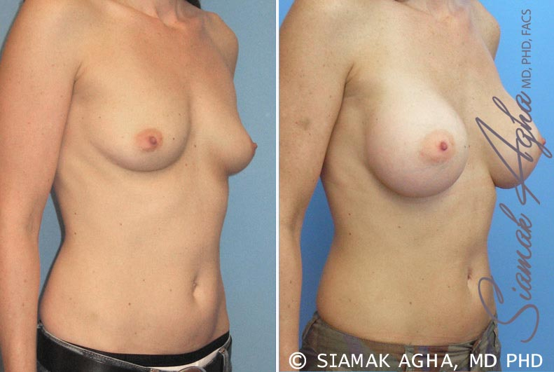 Orange County Newport Beach breast augmentation 16 Front Right View
