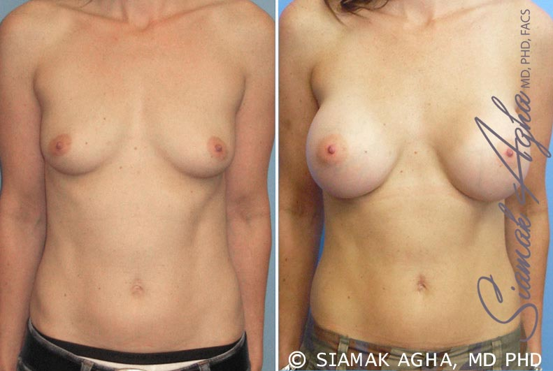 Orange County Newport Beach breast augmentation 16 Front View