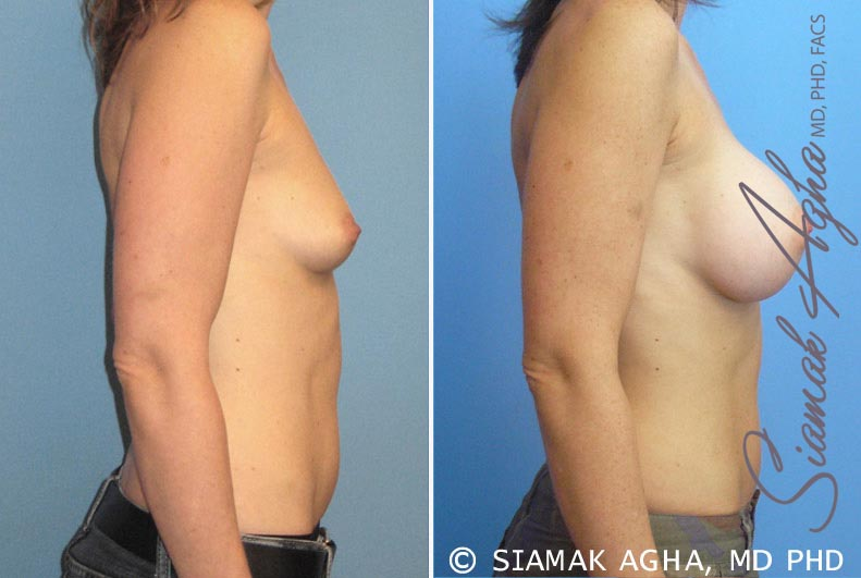 Orange County Newport Beach breast augmentation 16 Right View