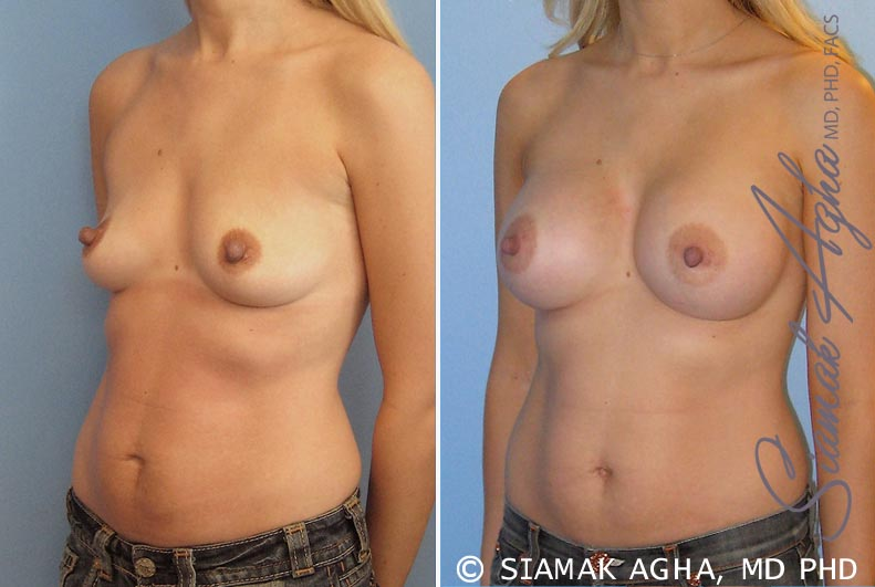 Orange County Newport Beach breast augmentation 17 Front Left View
