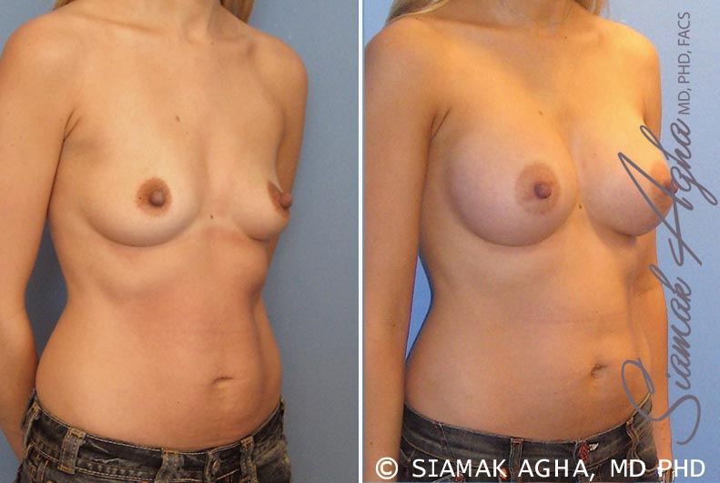 Orange County Newport Beach breast augmentation 17 Front Right View