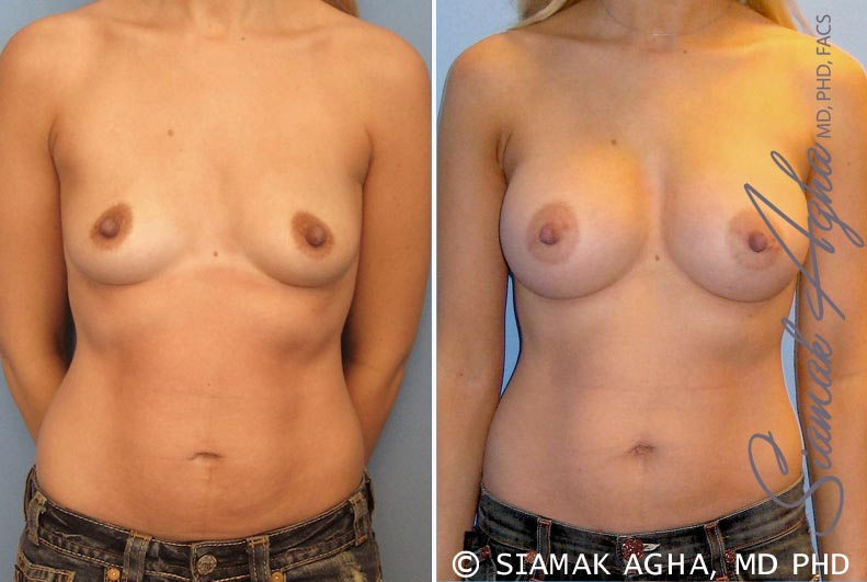 Orange County Newport Beach breast augmentation 17 Front View