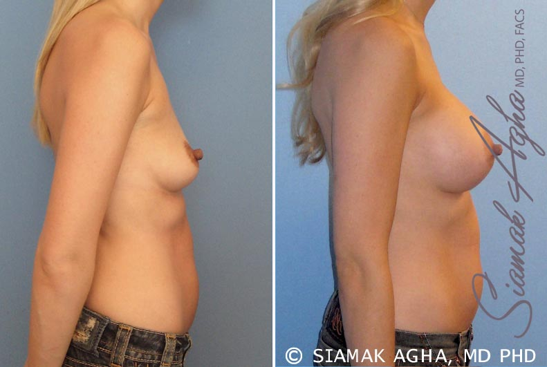 Orange County Newport Beach breast augmentation 17 Right View