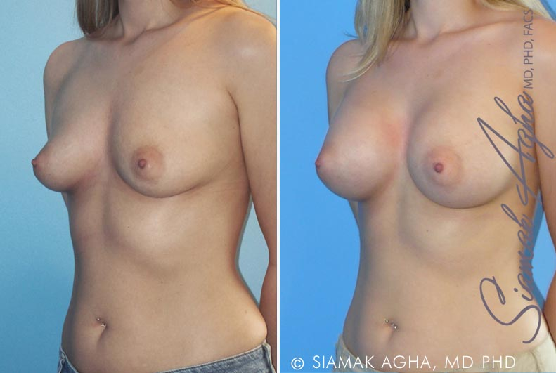 Orange County Newport Beach breast augmentation 18 Front Left View
