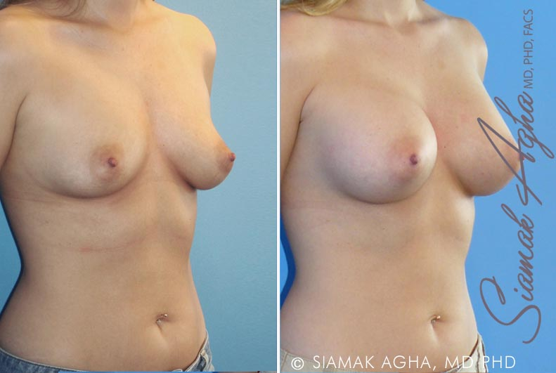 Orange County Newport Beach breast augmentation 18 Front Right View