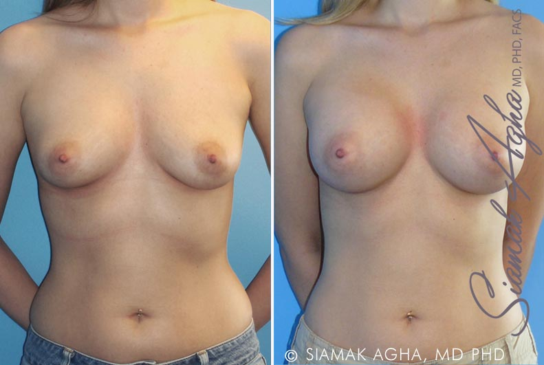 Orange County Newport Beach Breast Augmentation Patient 18